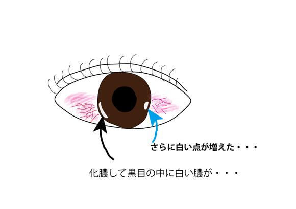 黒目の傷イラスト2.png